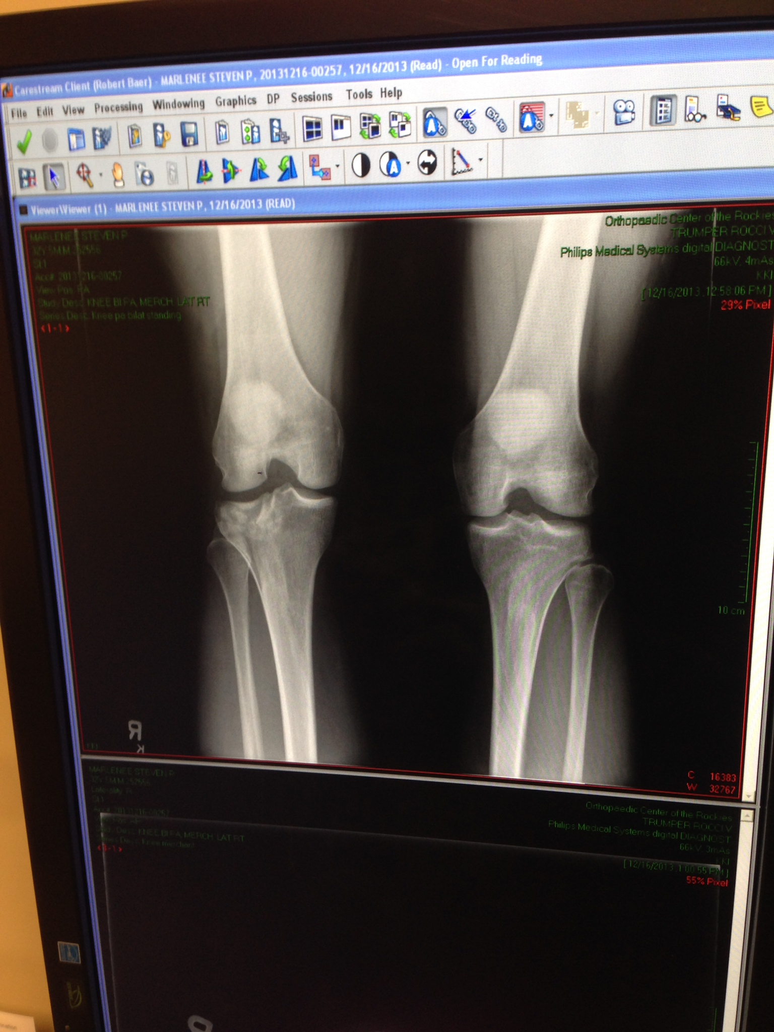 Shattered Tibial Plateau - X-Ray